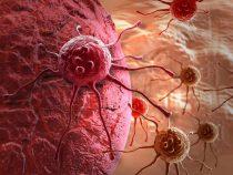 Cuales son los tipos mas comunes de cancer